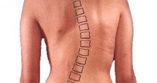 scoliosis_bh_600_600
